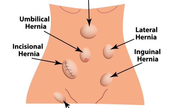 June is National Hernia Awareness Month