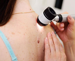 South Bay Skin Cancer and Melanoma Institute